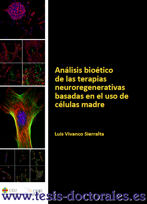 Tesis_Doctoral_0142.png
