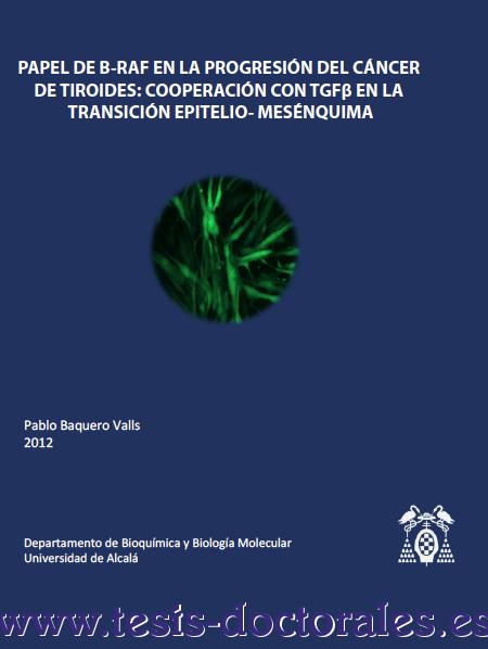 Tesis_Doctoral_0175.png