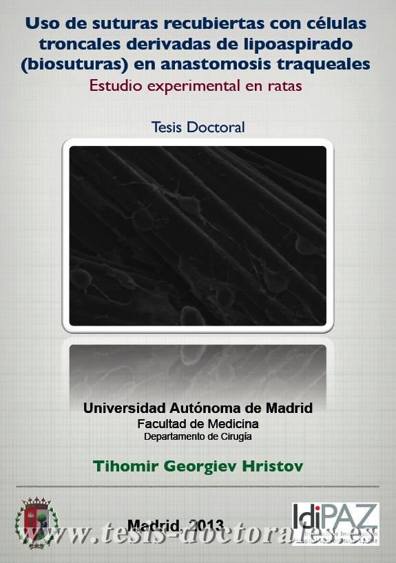 Tesis_Doctoral_0231.png